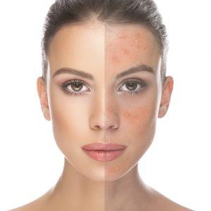Indepartare tipuri de acnee